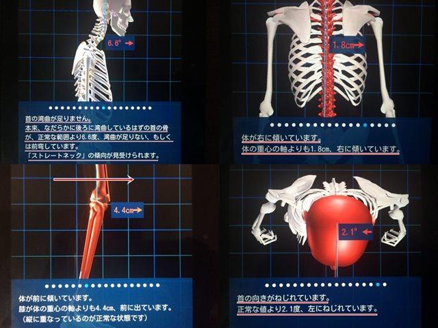i-body 3d診断測定